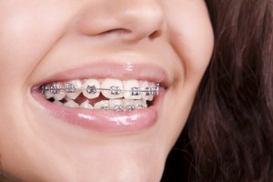 Someone smiling with braces