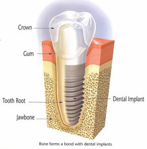Dental Implant Diagram
