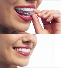 Two images: one of a woman placing her Invisalign aligner. The other, she's smling with it in.