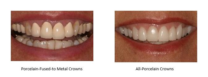 all porcelain crowns versus metal based crowns