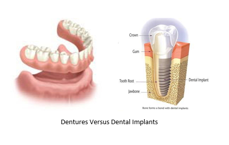 dentures and dental implant side by side