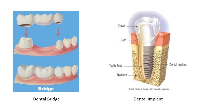 A side by side comparison of a dental bridge and a dental implant