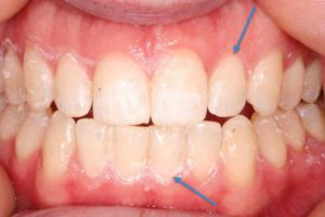 picture of teeth and where the gumling is located