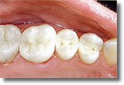 After picture with white composite fillings