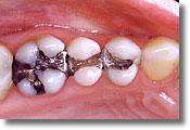 Tulsa mercury-free dentist