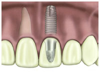 Tulsa affordable dental implant