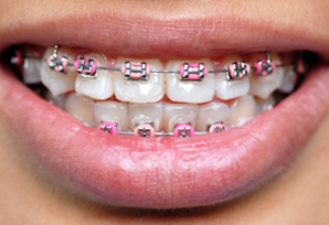 Orthodontist metal braces with pink bands.