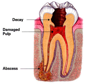 Tulsa root canal treatment